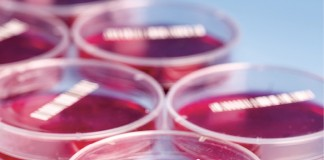 Petri_dishes_with_blood_samples